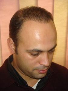 implant capillaire prix maroc